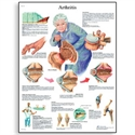 Picture of Arthritis Chart