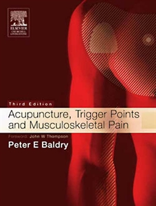 Picture of Acupuncture, trigger points and musculoskeletal pain